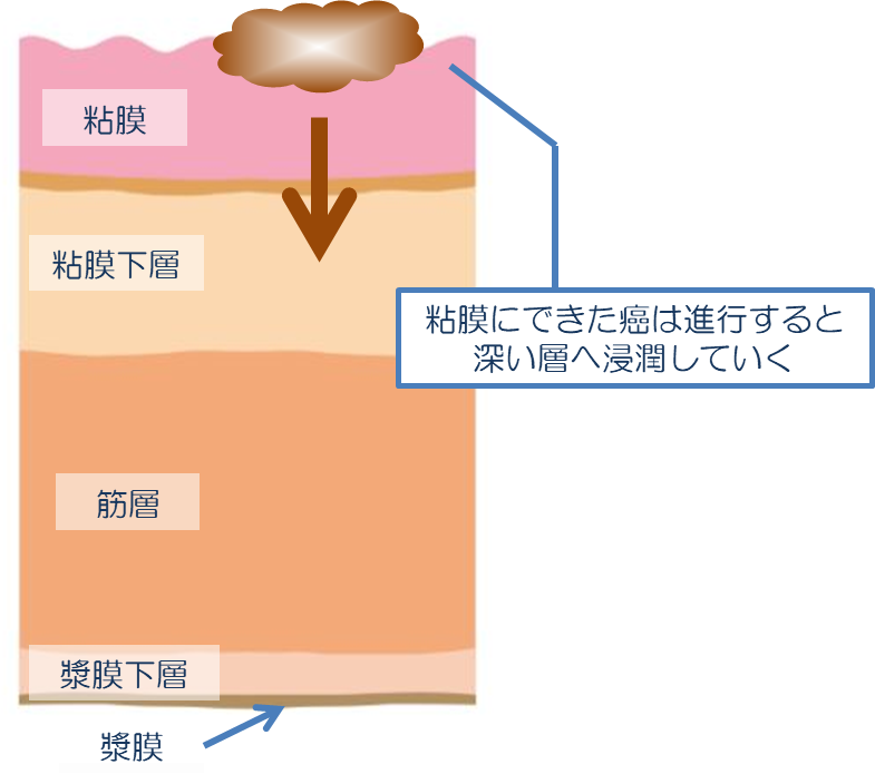 粘膜にできた癌は進行すると深い層へ浸潤していく