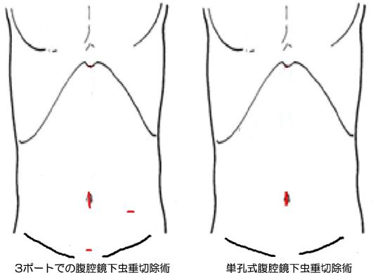 3ポートでの腹腔鏡下虫垂切除術・単孔式腹腔鏡下虫垂切除術