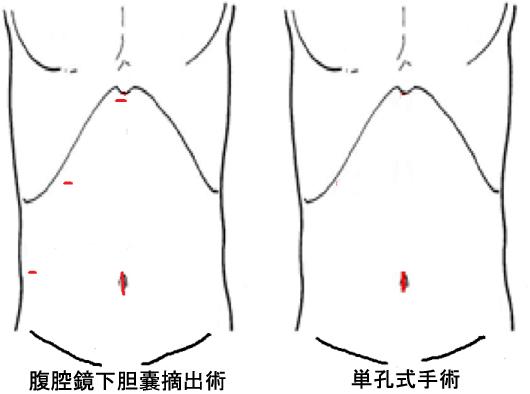 腹腔鏡下胆嚢摘出術・単孔式手術